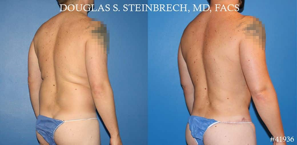 Body banking, fat transfer to shoulder and pecs by Dr. Steinbrech