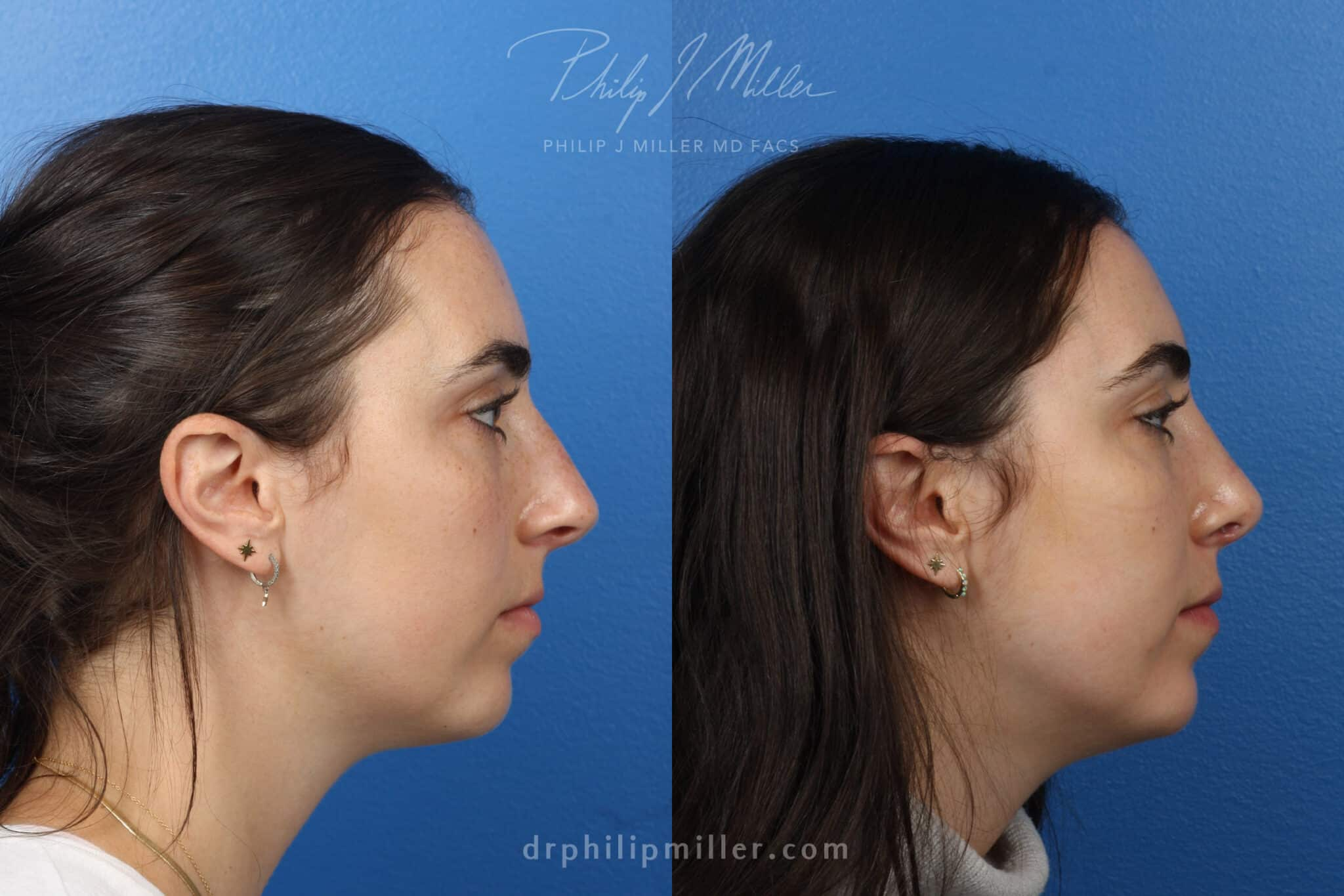Rhinoplasty to improve nasal bridge and tip, 3 month post-op, by Dr. Miller