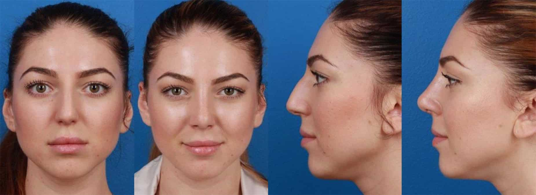 New York female patient before and after image for a rhinoplasty to remove the nasal hump