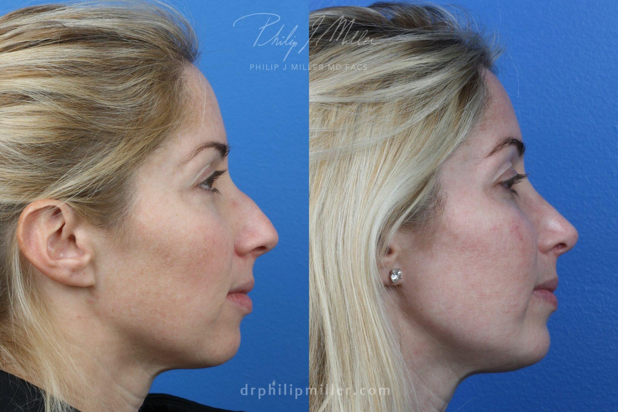 Rhinoplasty to straighten nasal bridge by Dr. Miller