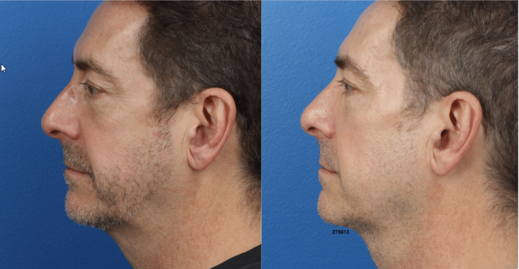 male jaw contouring results in Manhattan, NY