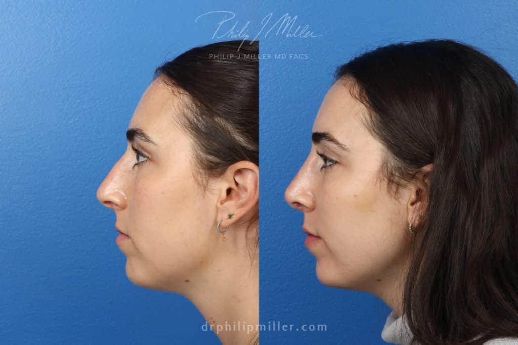 rhinoplasty results in Manhattan, NY