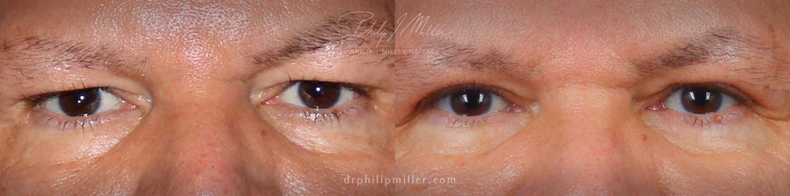 Upper blepharoplasty to treat eyelid hooding by Dr. Miller