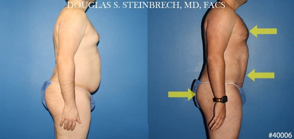 NYC tummy tuck results