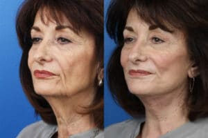 results of the benefits of cosmetic plastic surgery in NYC