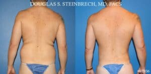 cosmetic plastic surgery results in NYC
