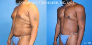 image of cosmetic plastic surgery results in NY, NY