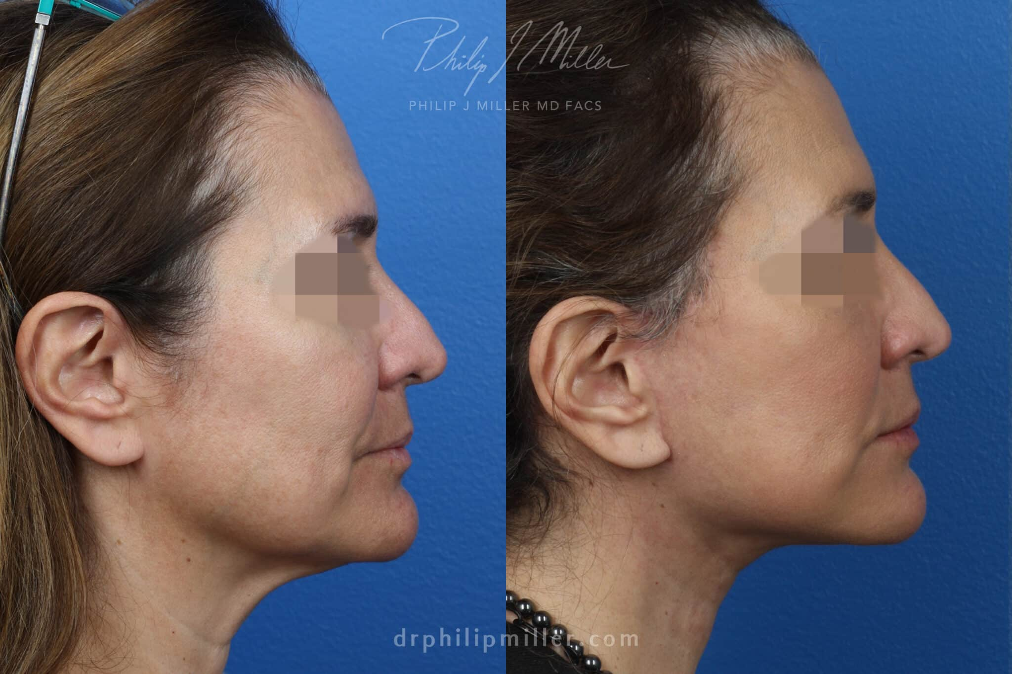 NatraNeck and NatraLift to rejuvenate the neck and lower face, 2 months post-op, by Dr. Miller