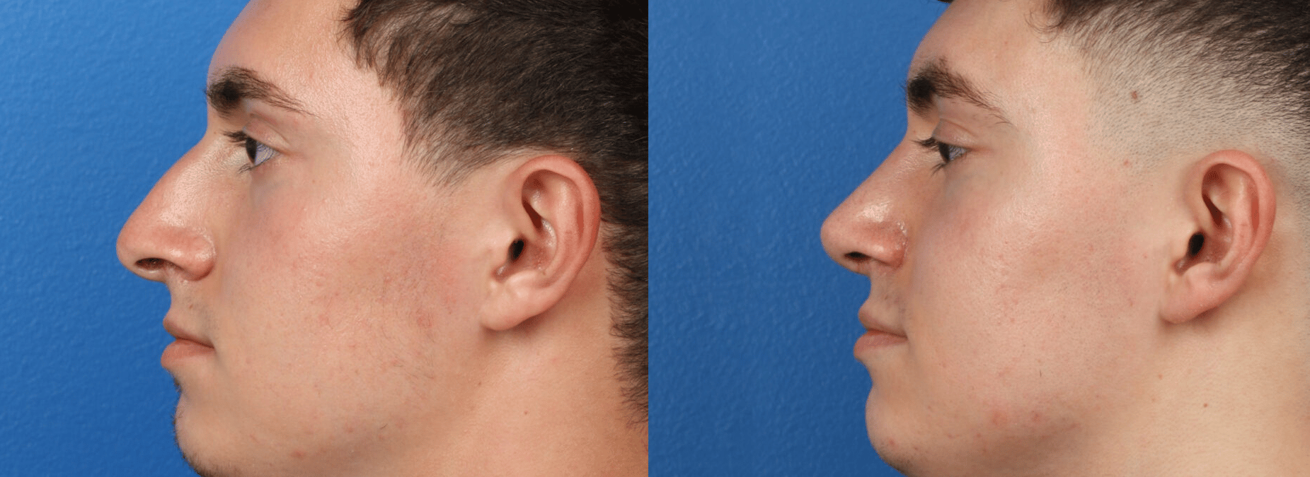 side images of a young male comparing his nose after the rhinoplasty. The nose is more straight after the procedure, New York, NY