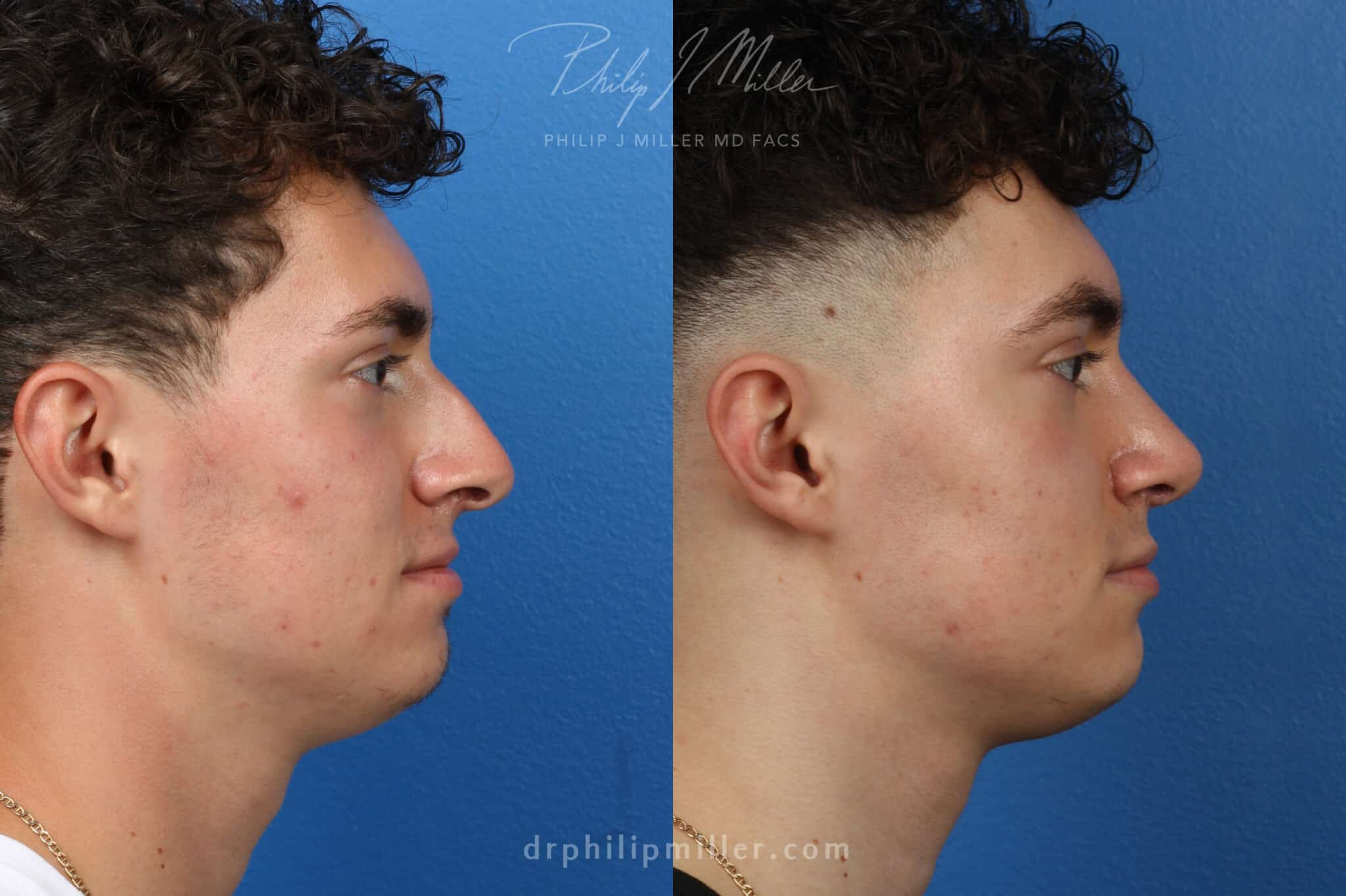 Rhinoplasty to correct bridge and nasal tip, 3 months post-op, by Dr. Miller