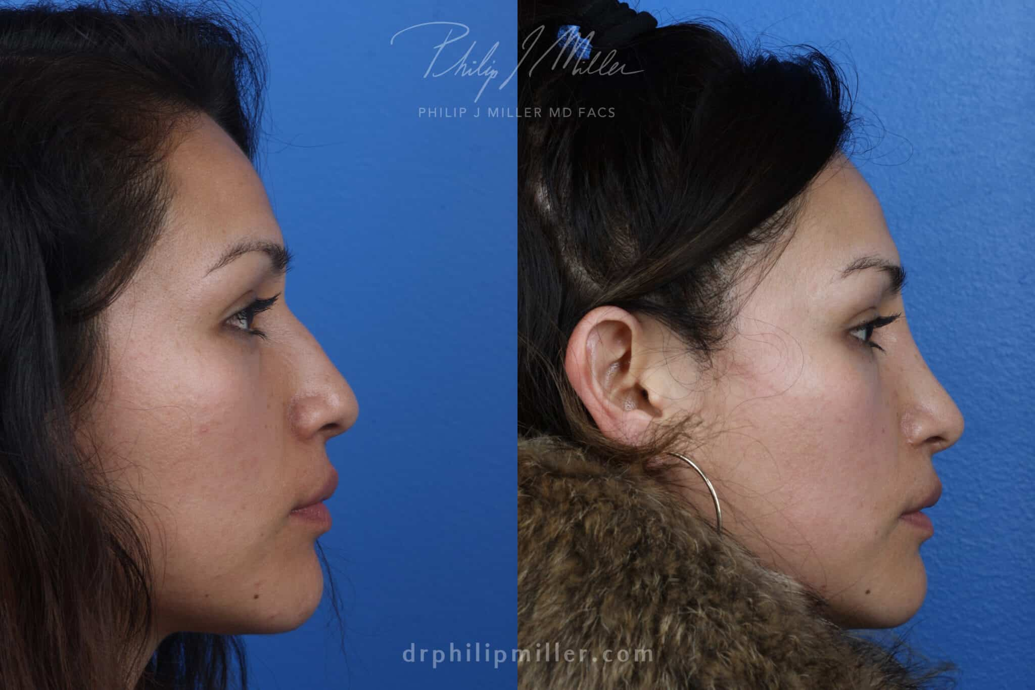 Rhinoplasty to remove hump from nasal bridge and refine tip by Dr. Miller