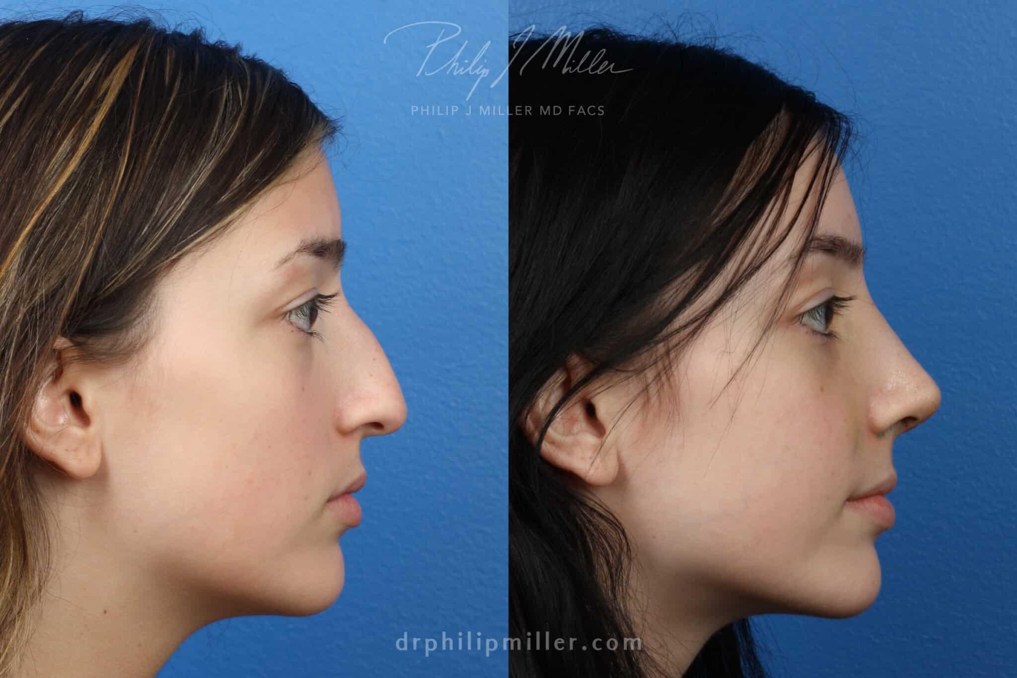 Rhinoplasty to straighten nasal bridge and rotate tip, one week post-op by Dr. Miller