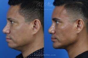 neck tite body contouring results in NY, NY