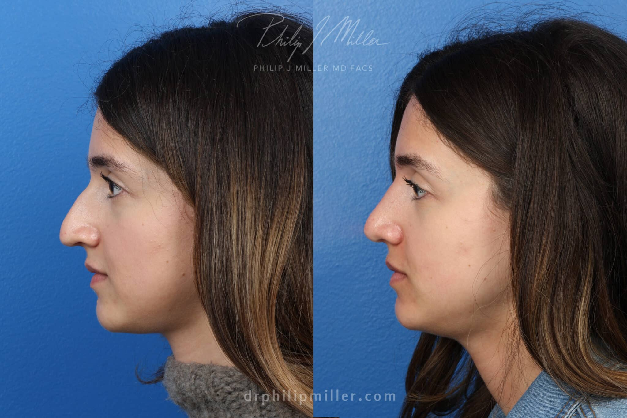 Rhinoplasty to remove hump from nasal bridge, three months later, by Dr. Miller