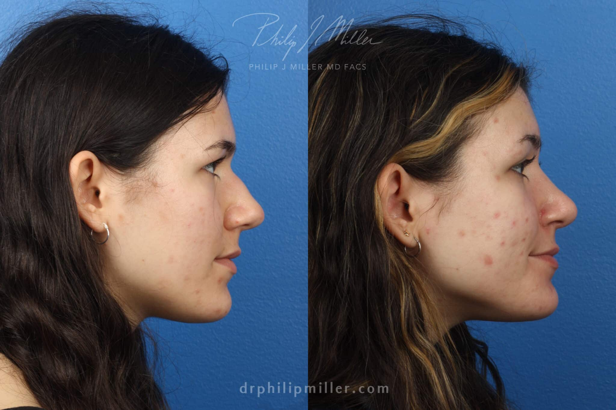 Rhinoplasty to improve the appearance of the nose, one week post-op, by Dr. Miller