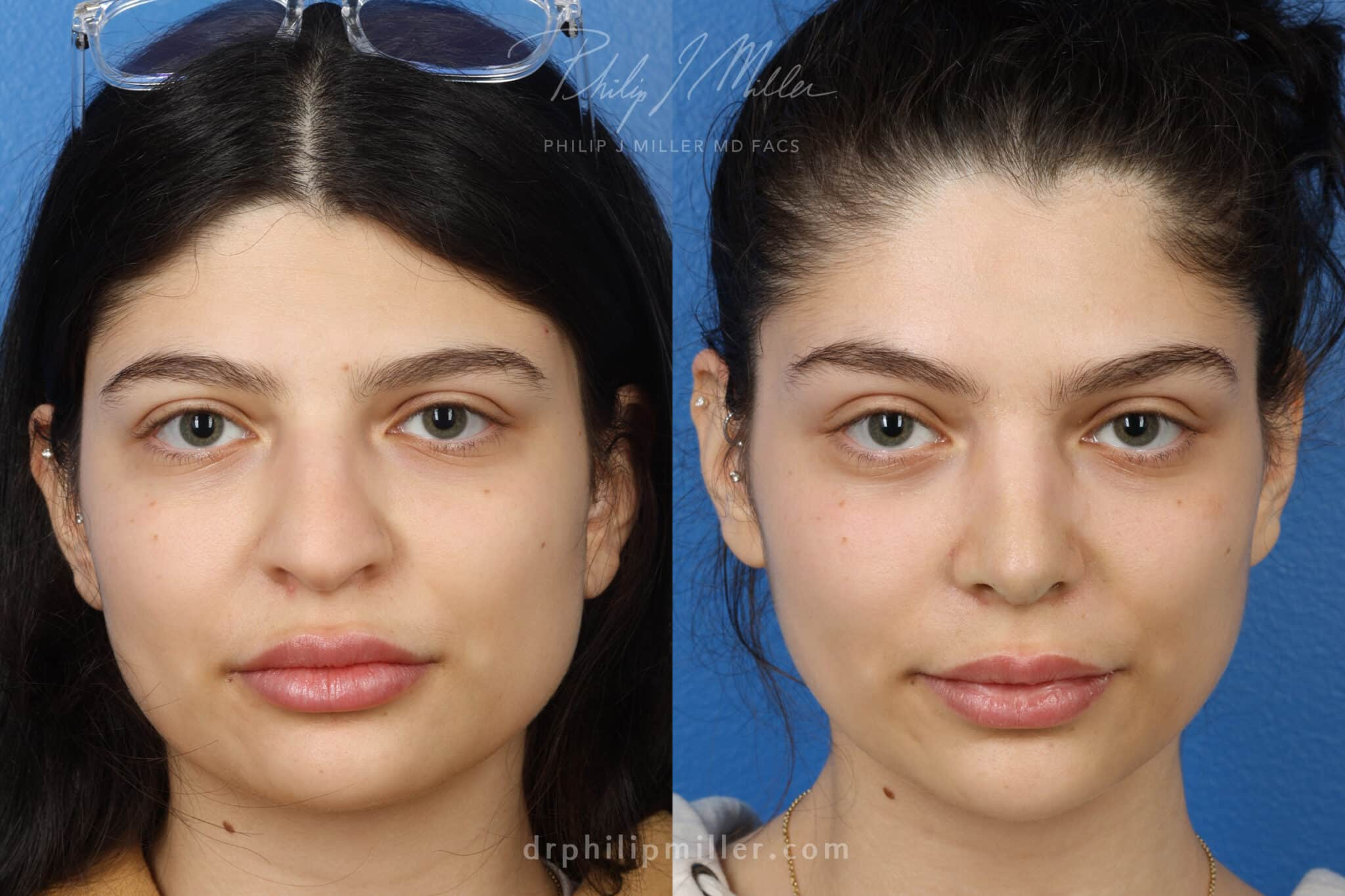 Rhinoplasty to enhance appearance of nose, one week post-op, by Dr. Miller