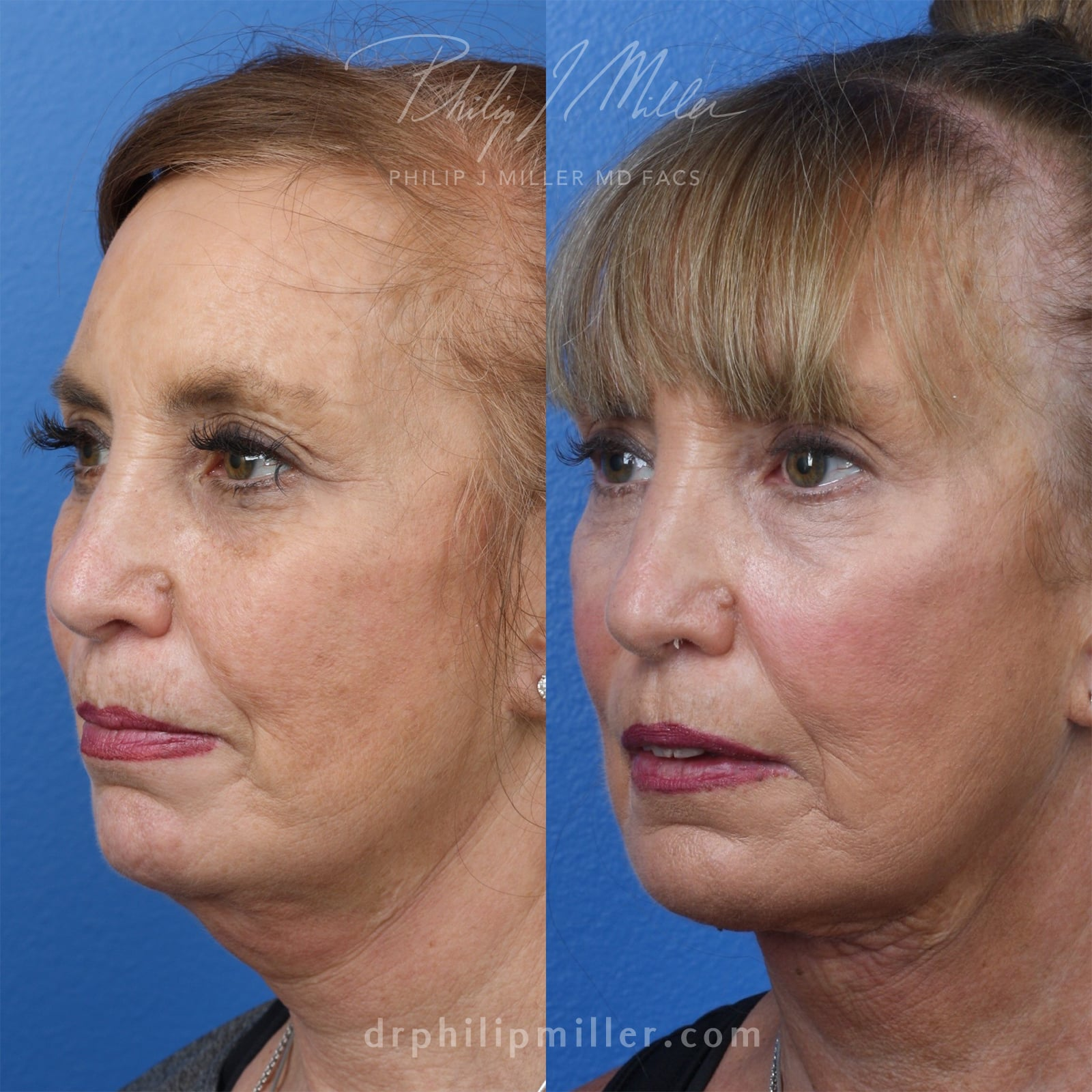 MyEllevate treatment to rejuvenate the lower face, by Dr. Miller