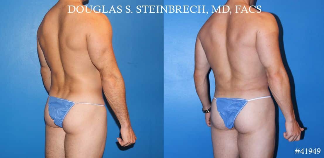 Liposuction and body banking to sculpt midsection, augment pecs and shoulders by Dr. Steinbrech
