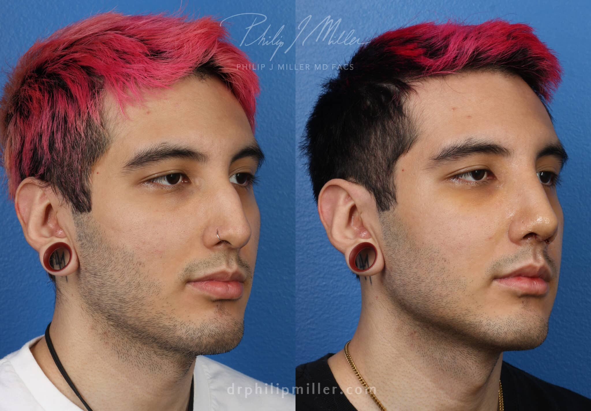 Rhinoplasty to improve the contour of the nose by Dr. Miller
