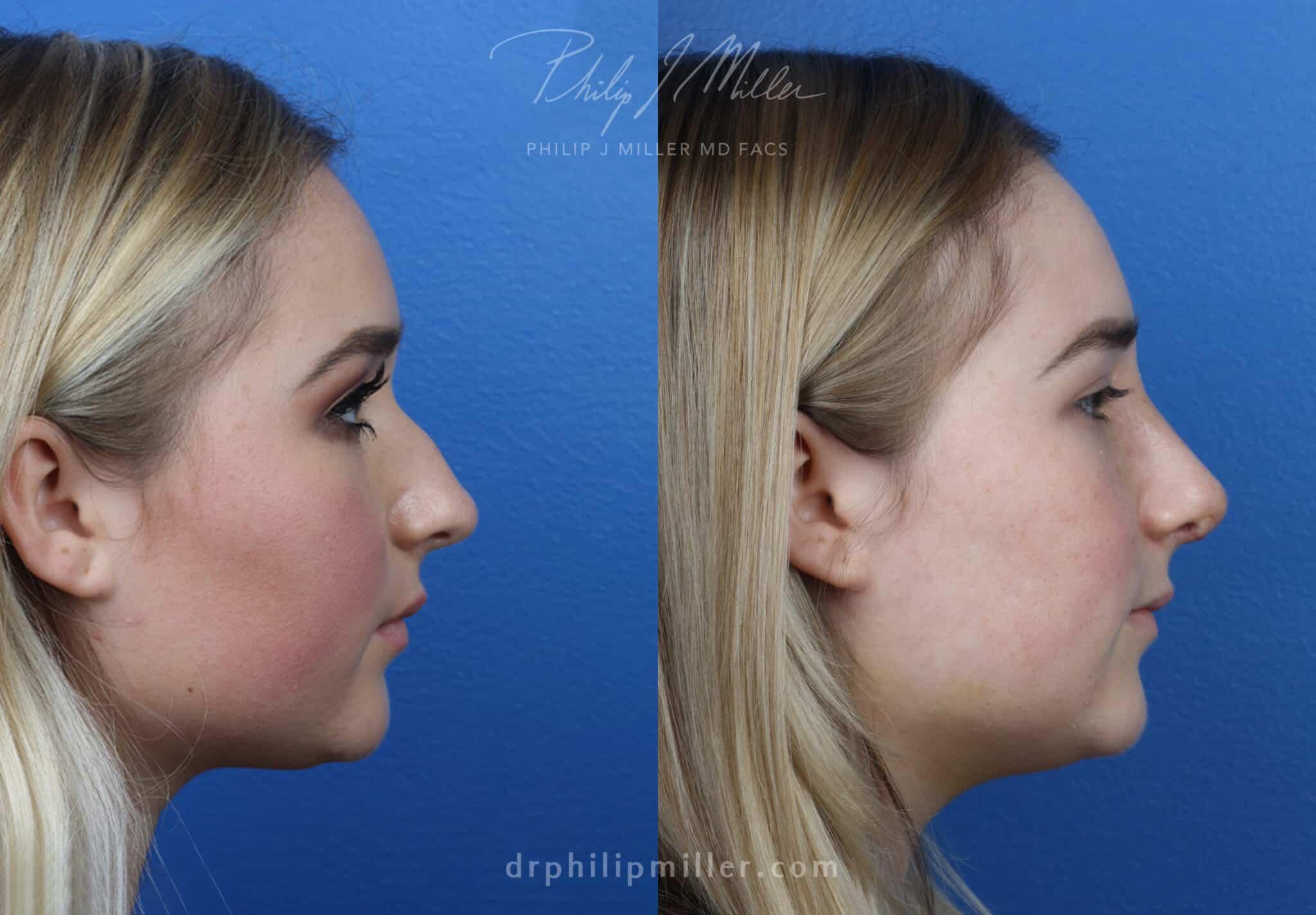 Rhinoplasty to adjust the nasal bridge by Dr. Miller